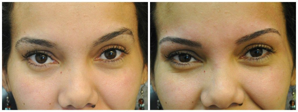 threading-before-and-after